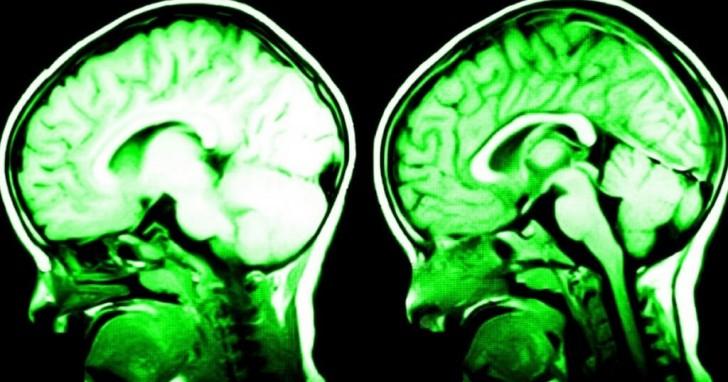 7 πράγματα που αλλάζουν με φυσικό τρόπο τον εγκέφαλο σας