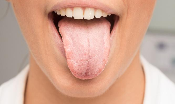 Άσπρη γλώσσα: Αιτίες, θεραπεία και πρόληψη
