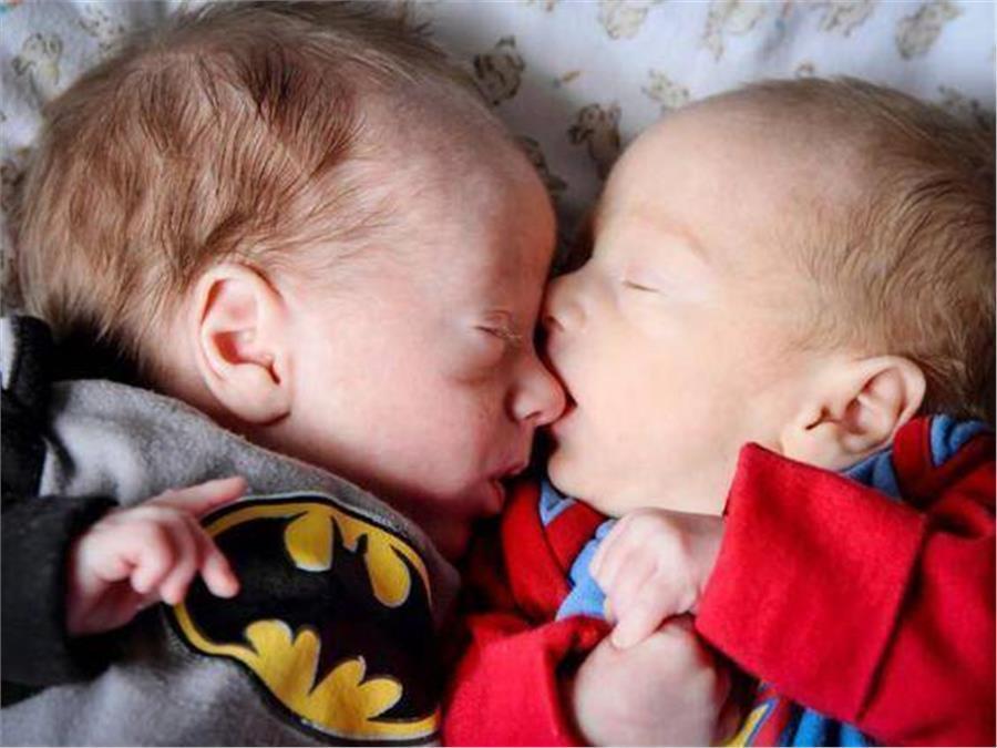 Το θαύμα της αγάπης: Τα δίδυμα αδερφάκια που «ξεγέλασαν τον θάνατο» με μια αγκαλιά