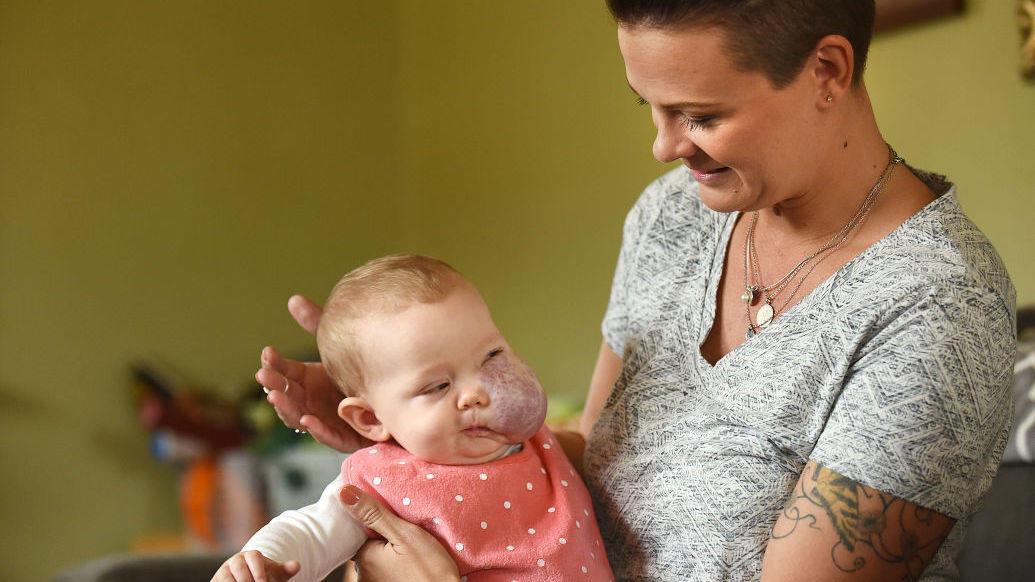 Μικρό κοριτσάκι που γεννήθηκε με ένα τεράστιο όγκο στο πρόσωπο μεταμορφώνεται εντελώς χάρη σε μια ομάδα αφοσιωμένων γιατρών