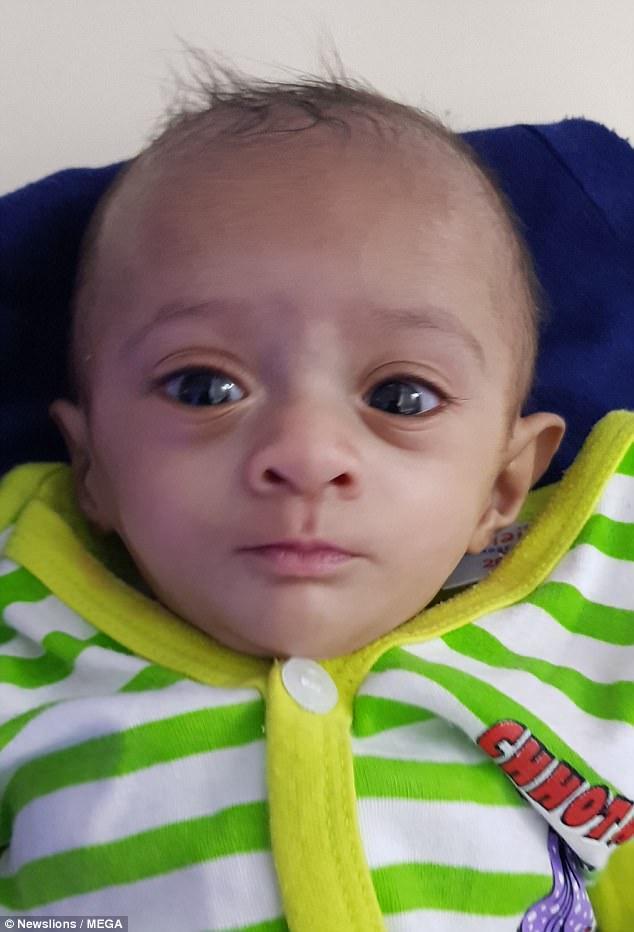 Μωρό που όταν γεννήθηκε ζύγιζε λιγότερο από μία σοκολάτα είναι το μικρότερο μωρό που κατάφερε ποτέ να επιβιώσει