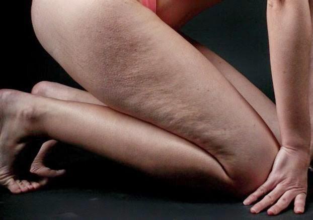 Έχετε χαλαρό και κρεμασμένο δέρμα; Συσφίξτε το με φυσικό τρόπο!