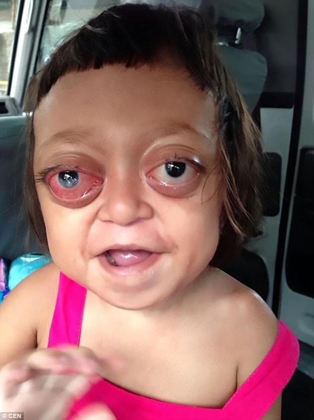 Μητέρα πούλησε το ανάπηρο κορίτσι της σε συμμορία για να ζητιανεύει μέχρι που του έδωσαν μια νέα ευκαιρία στην ζωή