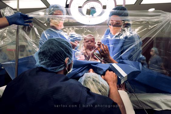 Διαγωνισμός φωτογραφίας παρουσιάζει τις πιο εντυπωσιακές φωτογραφίες εγκυμοσύνης και τοκετού!