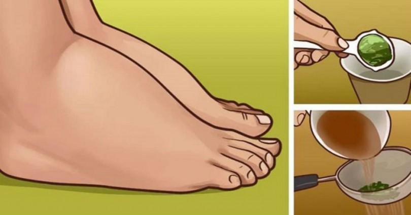 Απαλλαγείτε από τα πρησμένα πόδια και αστραγάλους με αυτό το αποτελεσματικό φυσικό φάρμακο