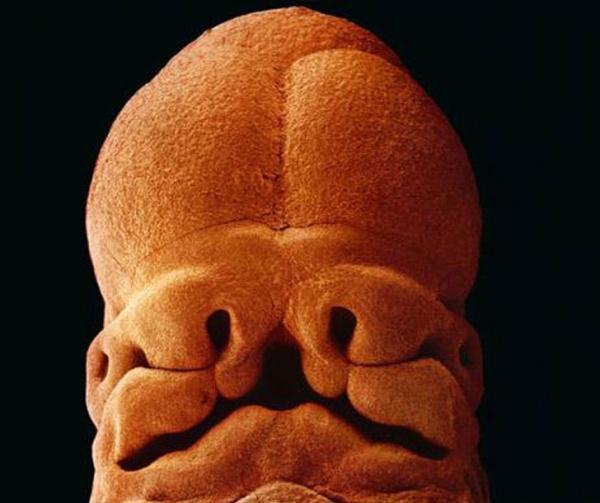 Συγκλονιστικές φωτογραφίες που αποτυπώνουν την ανάπτυξη του ανθρώπινου εμβρύου, από την σύλληψη μέχρι την γέννηση
