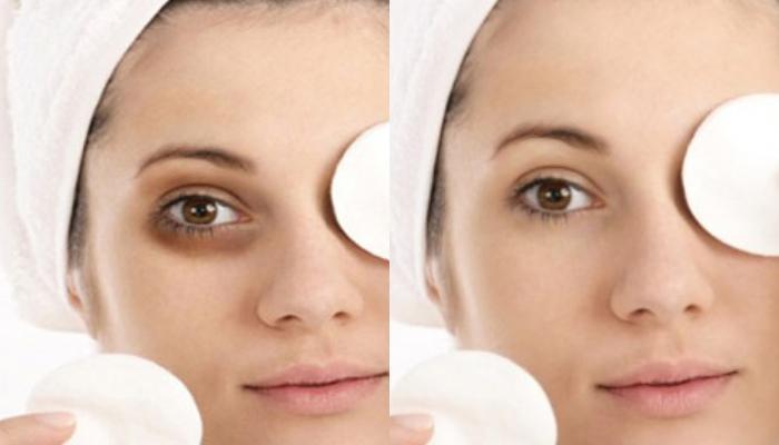 DIY: Απαλλαγείτε από τους μαύρους κύκλους με αυτό το απίστευτα αποτελεσματικό γαλάκτωμα ματιών