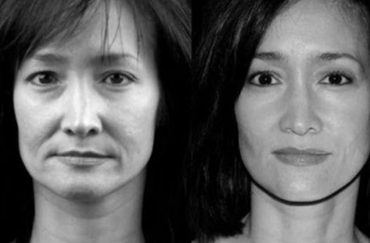 Απόλυτη μεταμόρφωση σε μόλις λίγες μέρες: Κάνε lifting στο πρόσωπό σου με ειδικές ασκήσεις και ένα κουτάλι