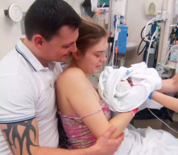 Η γέννηση αυτού του μωρού ήταν τόσο πρόωρη που ο εγκέφαλος του φαινόταν στο δέρμα του
