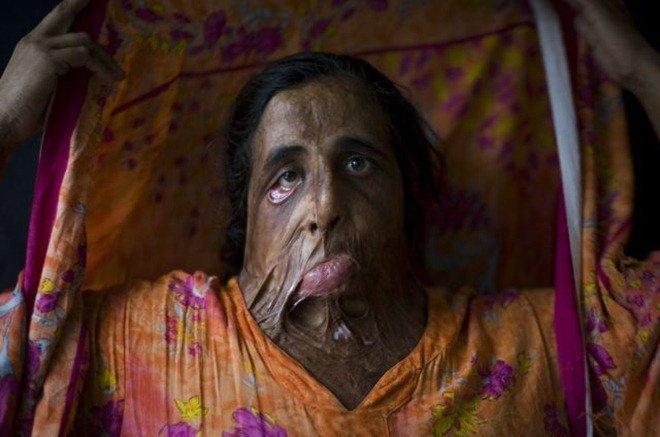 Νεαρές γυναίκες στο Πακιστάν αποκαλύπτουν τις συνέπειες της άρνησης μιας πρότασης γάμου