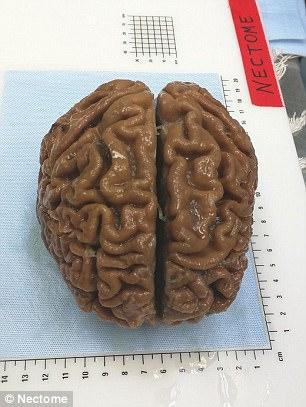 Ένας δισεκατομμυριούχος πλήρωσε 10.000 δολάρια για να πεθάνει, έτσι ώστε ο εγκέφαλός του να διατηρηθεί για πάντα
