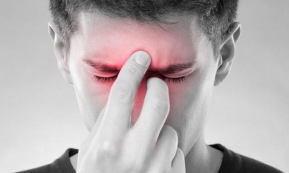 Τι είναι η ιγμορίτιδα; Αίτια, συμπτώματα, επιπλοκές, θεραπεία, πρόληψη