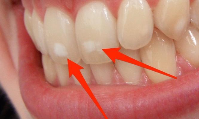 Έχετε και εσείς αυτές τις λευκές κηλίδες στα δόντια; Δείτε που οφείλονται και τι πρέπει να κάνετε!