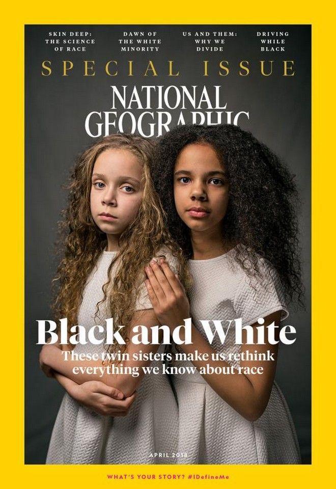 Οι ξεχωριστές δίδυμες αδερφές που έγιναν σύμβολο κατά του ρατσισμού