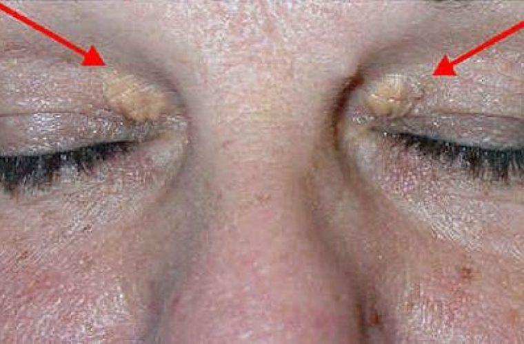 Μήπως έχετε αυτά τα σημάδια στα μάτια σας; Δείτε τι αποκαλύπτουν για την υγεία σας...