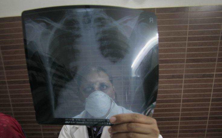 Οι επιστήμονες τονίζουν οτι η φυματίωση είναι παρούσα στην Ελλάδα!