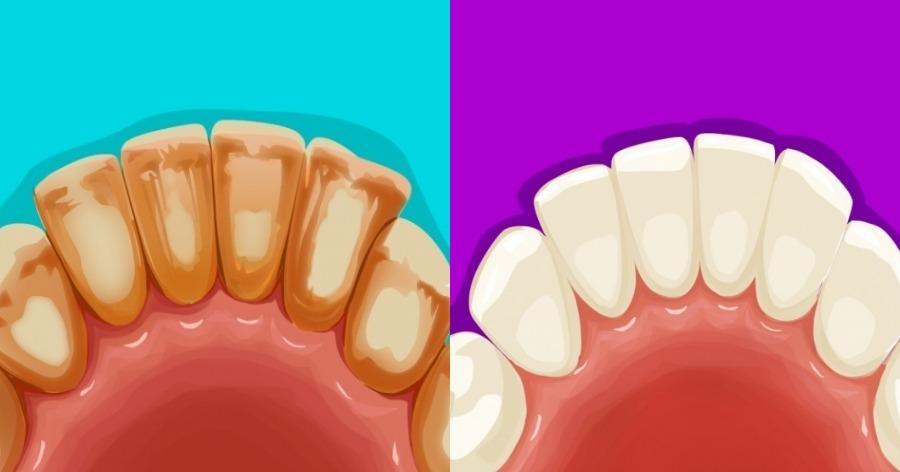 Έχετε κίτρινα δόντια; Απαλλαγείτε από αυτά με αποτελεσματικές σπιτικές θεραπείες