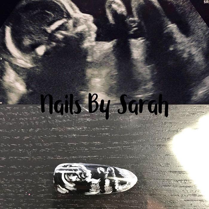 Νέα τάση νυχιών: Γυναίκες ζητούν ως σχέδιο νυχιών την εικόνα από το υπερηχογράφημα του μωρού τους