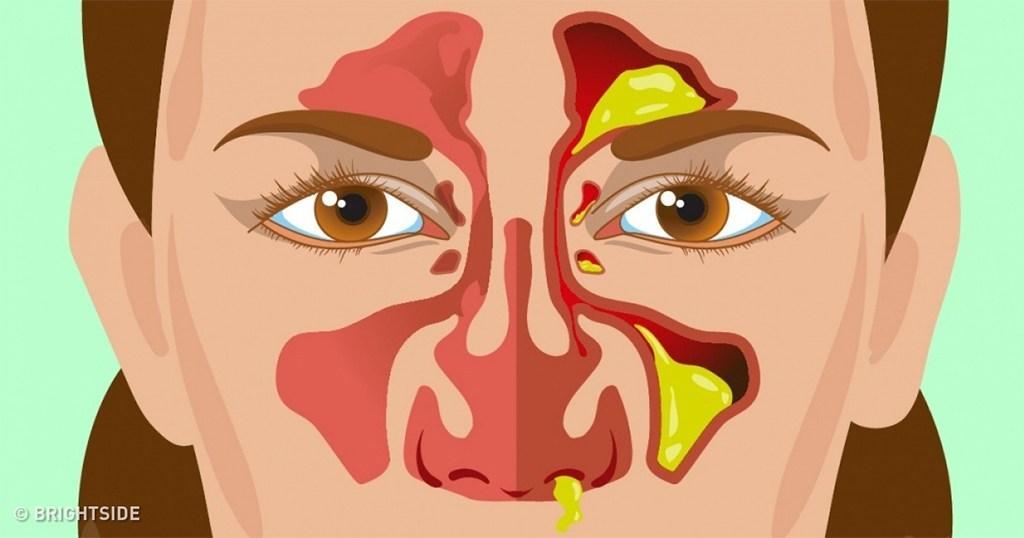 9 Διαφορετικοί τύποι εκκριμάτων της μύτης και τι δείχνουν για την υγεία μας;