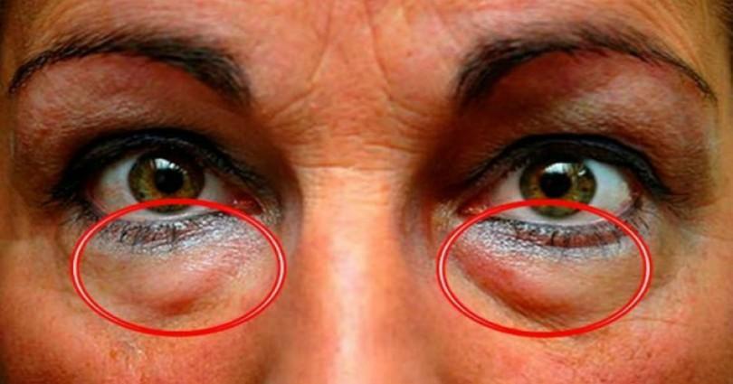 Αυτό είναι το ελληνικό μπαχαρικό που προστατεύει τα μάτια απο 90 παθήσεις!