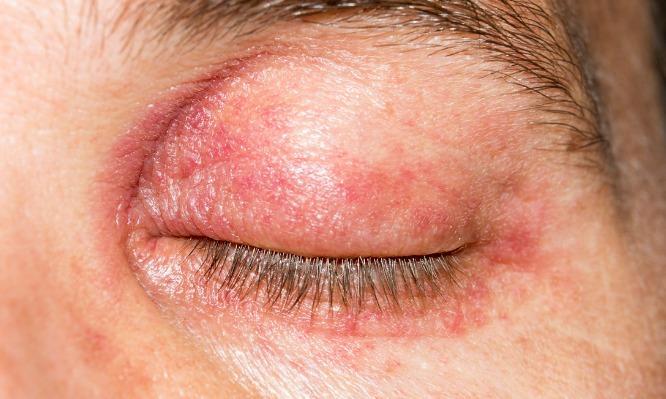 Έρπης στα μάτια – Τύποι, συμπτώματα και αντιμετώπιση