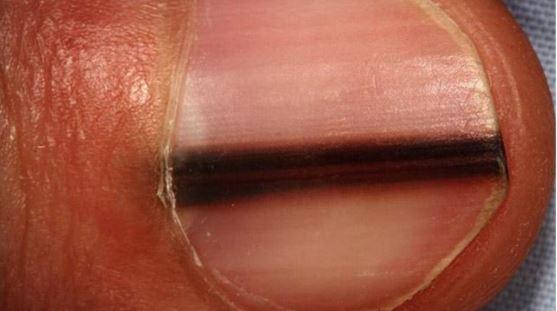Αν έχετε μια μαύρη γραμμή στο νύχι σας δώστε προσοχή! Δείτε τι μπορεί να σημαίνει για την υγεία σας...