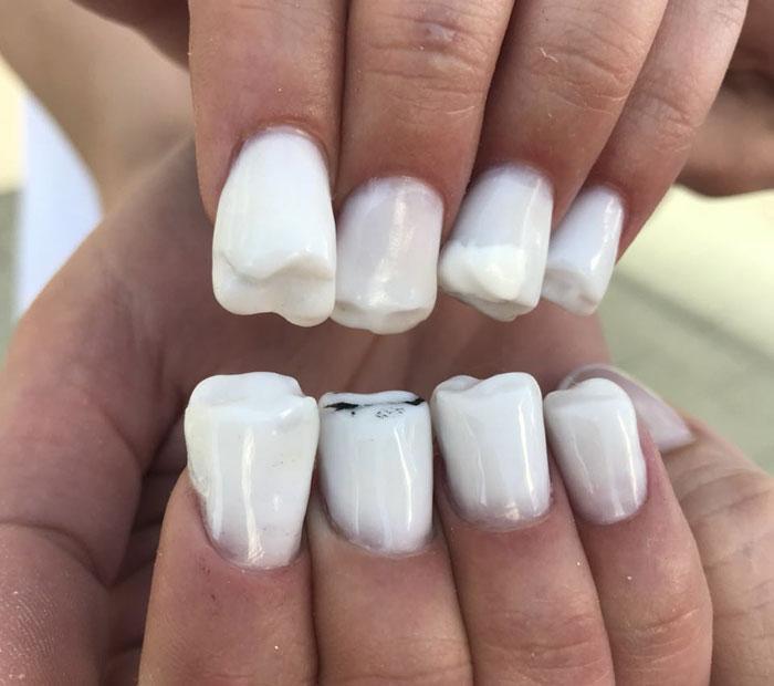 Η καινούργια κακάσχημη μόδα: Νύχια σε σχήμα δοντιών