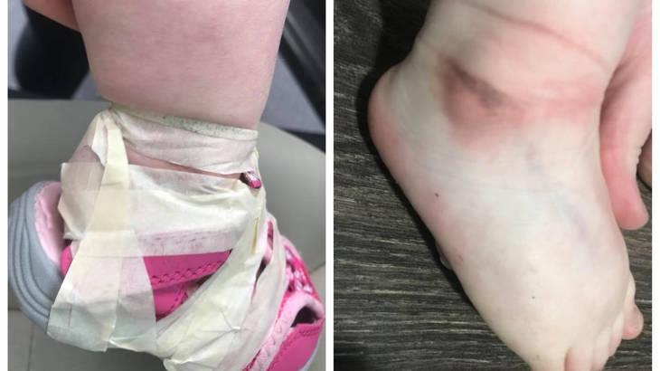 """Όταν η μαμά πήρε τη κόρη της από το παιδικό, ανακάλυψε οτι είχαν """"δέσει"""" το παπούτσι της κόρης της με κολλητική ταινία πάνω στον αστράγαλο.."""