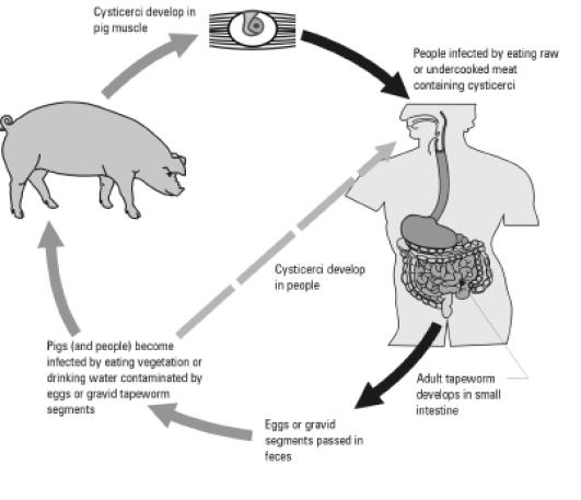 Μεγάλη Προσοχή! Κάτι που τρώμε όλοι, μπορεί να δημιουργήσει παράσιτα στον εγκέφαλο!