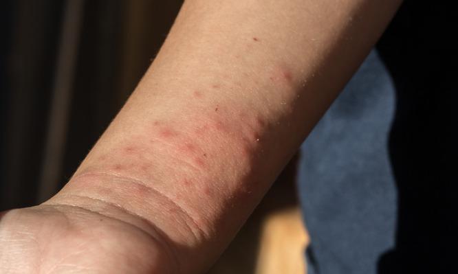 Το αποτελεσματικό κόλπο πριν βγείτε έξω  για να μην σας τσιμπάνε τα κουνούπια