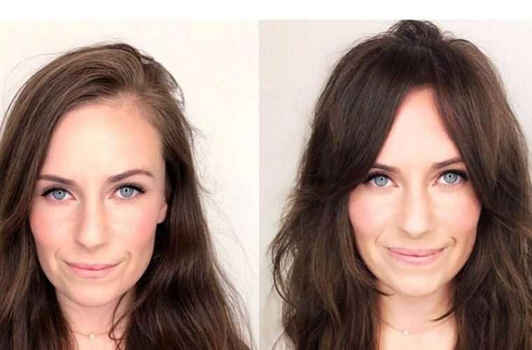 Αυτές οι γυναίκες είναι η απόδειξη ότι οι αφέλειες σε μεταμορφώνουν -Το πριν και το μετά