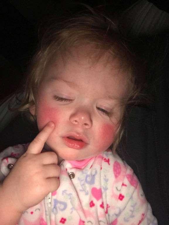 Απίστευτο: Αυτό το κoριτσάκι έχει αλλεργία σε κάτι που όλοι καταναλώνουμε καθημερινά