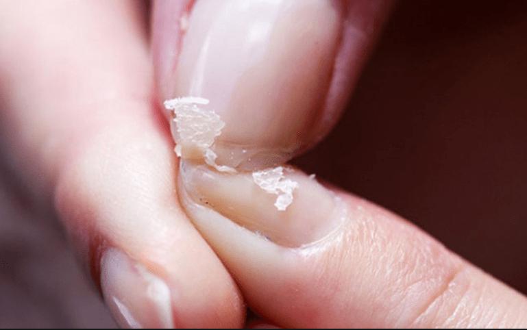 DIY συνταγή για σένα που σπάνε τα νύχια σου συνεχώς και είναι αδύναμα