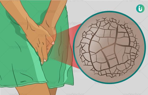 Προσοχή! Καντιντίαση από βρεγμένο μαγιό το καλοκαίρι: Με ποια συμπτώματα εκδηλώνεται;