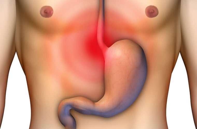 Διάτρηση στομάχου: Από τι πέθανε η Νατάσσα Βαρελά – Συμπτώματα και αντιμετώπιση