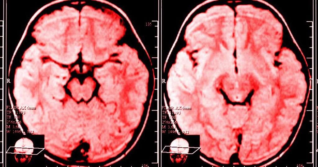 Γκρινιάζεις κάθε μέρα; Δες τι συμβαίνει στον εγκέφαλο σου, σύμφωνα με την επιστήμη