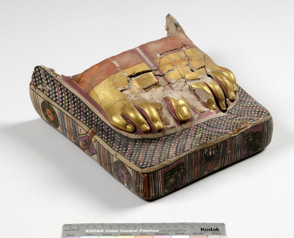 «Ελληνικό πόδι» – Η ιδιομορφία στα δάχτυλα που έγινε αισθητικό πρότυπο