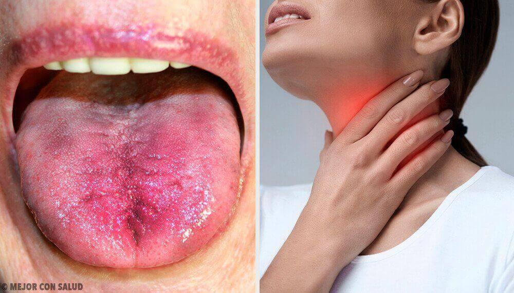 Έτσι θα καταλάβετε εάν έχετε πλάκα στο λαιμό σας!