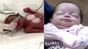Μωρό – θαύμα που γεννήθηκε 6 μηνών και ζύγιζε μισό κιλό κατάφερε να ζήσει και βγαίνει επιτέλους από το νοσοκομείο
