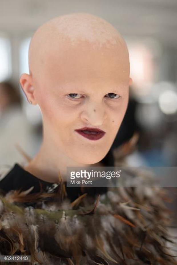 Την κορόιδευαν για χρόνια επειδή δεν είχε μαλλιά και δόντια, αν δείτε όμως που έχει φτάσει σήμερα…