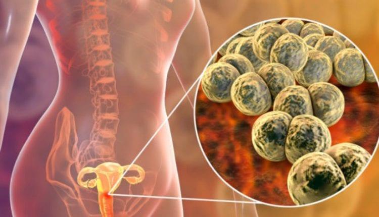 Τραχηλίτιδα: Τι είναι ακριβώς, αίτια, συμπτώματα και θεραπεία