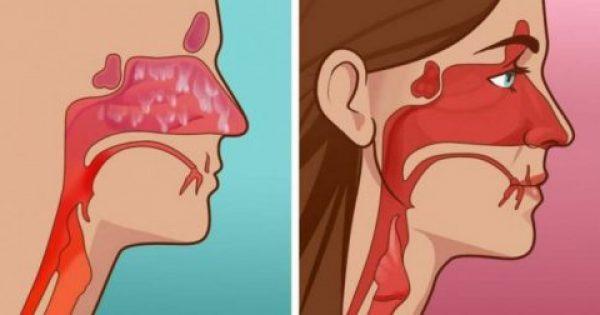 Φανταστικό! Ξεβουλώστε την Μύτη σας μέσα σε 20 δευτερόλεπτα με ΑΥΤΗΝ την Μυστική Συνταγή!
