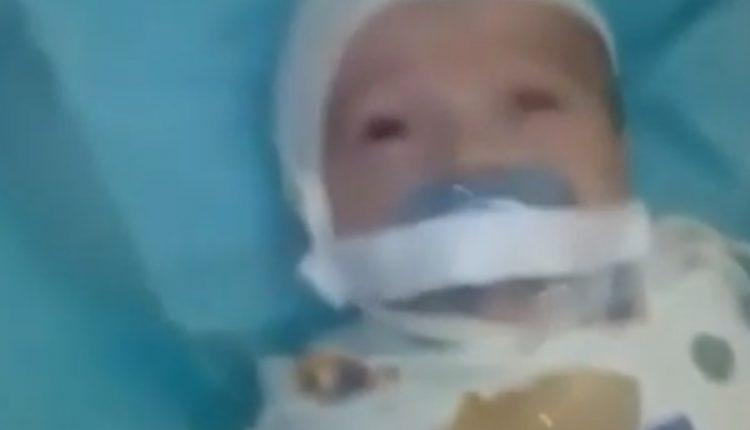 Βίντεο: Κόλησαν με μονωτική ταινία την πιπίλα σε στόμα μωρού 12 μόλις εβδομάδων…