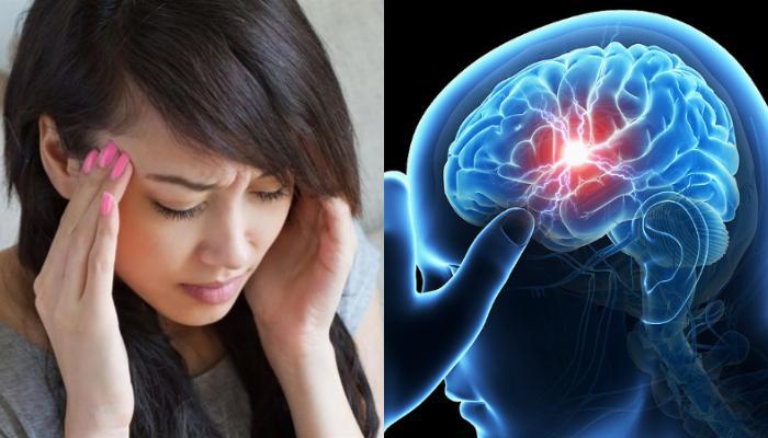 Ανεύρυσμα στον εγκέφαλο: Τα «ύπουλα» πρώιμα σημάδια