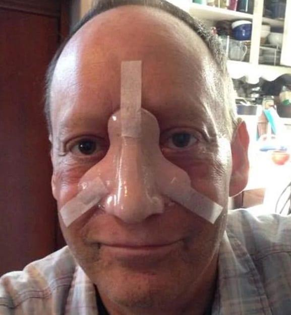 Πέθανε στα 58 του από καρκίνο στη μύτη γνωστός ηθοποιός