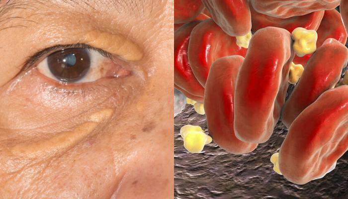 Υψηλή χοληστερίνη: Τα σημάδια στα μάτια που δείχνουν ανεβασμένη χοληστερόλη (εικόνες)