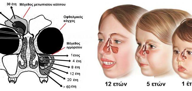 Έξαρση ρινοκολπίτιδας σε παιδιά και ενήλικες – Προσοχή στα Συμπτώματα. Τα μέτρα προφύλαξης
