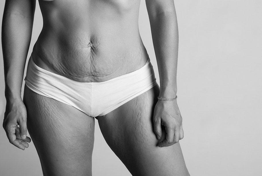 Το σώμα μίας μητέρας μετά την γέννα μέσα από συγκλονιστικές φωτογραφίες