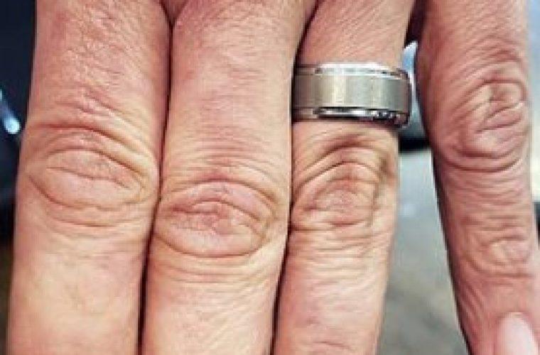 Απέκτησε ξανά τα δάχτυλά του μέσω… τατουάζ -Το αποτέλεσμα είναι εκπληκτικό (εικόνα)