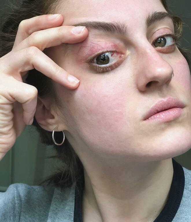 Με ράμματα μέσα στο μάτι παίκτρια του GNTM ύστερα από ατύχημα!